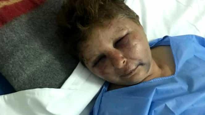 """Polițist din Olt acuzat că a bătut o femeie în timp ce încerca să o violeze! """"A zis că mă îngroapă în curte"""""""
