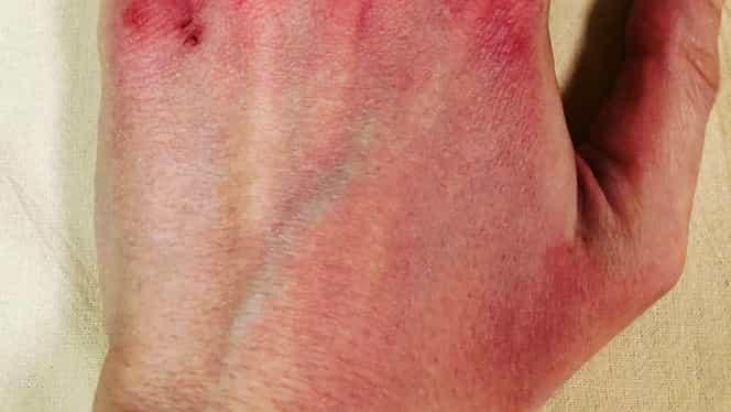 Cum arată mâinile infirmierilor din Italia, după ce ore în şir folosesc mănușile de protecție FOTO