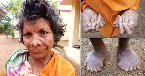 Cum arată femeia cu 31 de degete