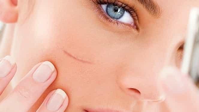 Cum să reduceţi cicatricele cheloide cu ajutorul naturii