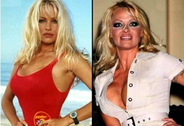 Pamela Anderson a fost una dintre cele mai apreciate femei din lume, dar odată cu înaintarea în vârstă, se pare că operațiile estetice au dus-o mai aproape de eșec decât de frumusețe