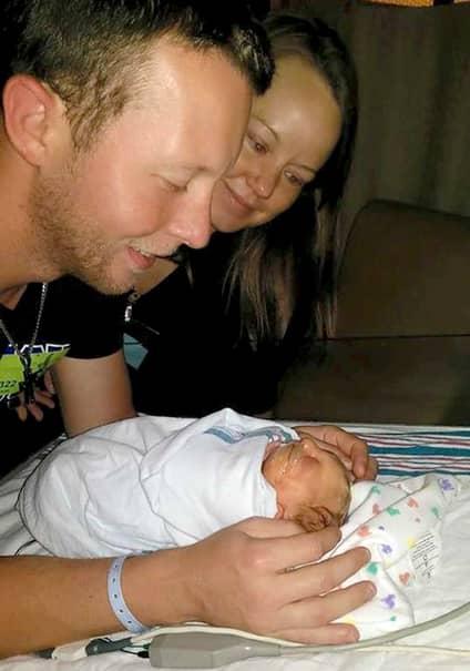 FOTO&VIDEO. Bebeluşul născut cu jumatate de craniu continuă să uimească lumea medicală