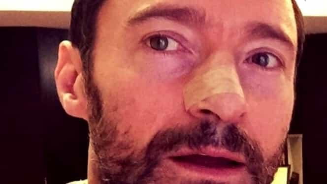 Hugh Jackman a învins din nou cancerul. Ce sfaturi le dă celebrul actor fanilor
