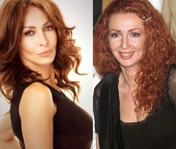 Mihaela Rădulescu a fost desființată de un medic estetician