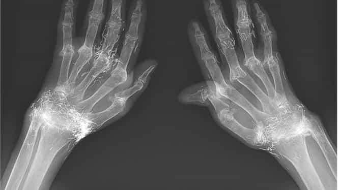 Încheieturi de aur! O femeie i-a uimit pe medici cu radiografia ei!