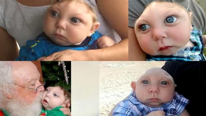 Copilul care s-a născut fără o parte din cap a murit. Povestea care a înduioșat întreaga planetă