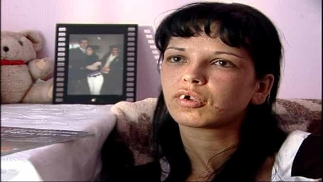 Deformată, Adina era refuzată la TOATE interviurile din cauza aspectului fizic şi ajunsese muritoare de foame. Dar l-a întâlnit pe Victor Slav. Cum arată ACUM