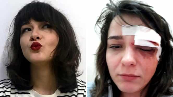 O tânără, jefuită şi bătută de un hoţ în Bucureşti! Mesajul ei, viral!