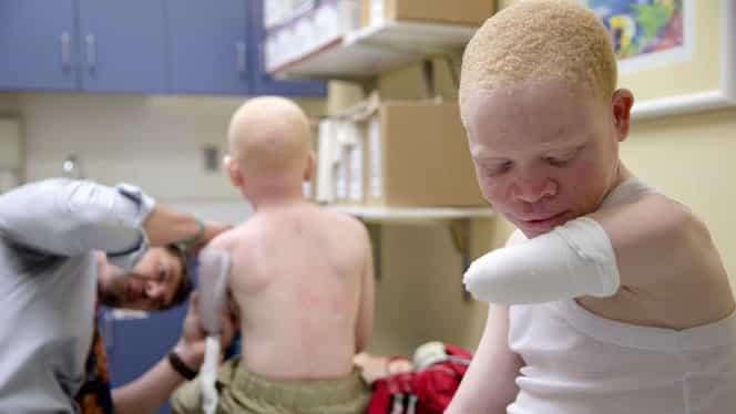 Albinos de 17 ani, ucis într-un ritual sinistru! Motivul incredibil pentru care i-au luat părţi din corp!