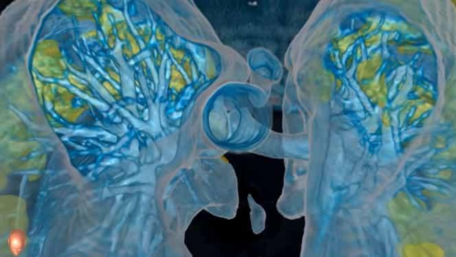 VIDEO Cum afectează coronavirusul plămânii unei persoane infectate