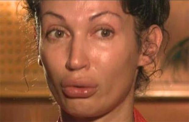 Nicoleta Luciu, operațiile au transformat-o! Iată ce intervenții are vedeta