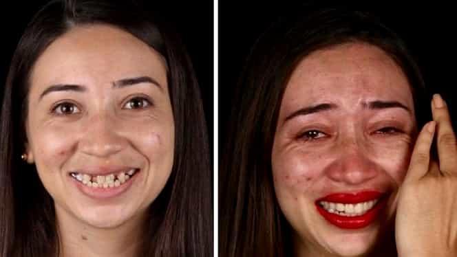Un stomatolog brazilian îi ajută pe cei sărmani să își facă dinții. Galerie foto cu oamenii cărora le-a schimbat aspectul fizic