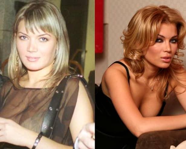 Și vedetele din România au apelat, de-a lungul anilor, la operații estetice