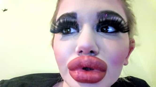 O tânără din Bulgaria are cele mai mari buze din lume! Cum arată după cele 20 de injecții pe care și le-a făcut