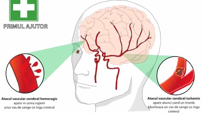 Semnele care îţi spun că ai suferit un atac vascular cerebral! Timpul este esenţial!