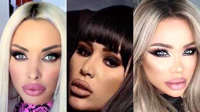 Operațiile estetice le-au clonat! Verdictul crunt al esteticianului pentru Bianca Drăgușanu, Daniela Crudu și Loredana Chivu