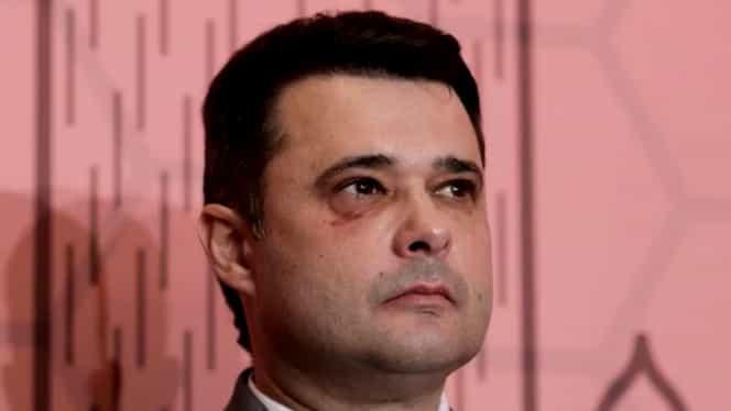 """Daniel Florea, cu ochiul vânăt la Conferința extraordinară a PSD București: """"Vedeți semnul ăsta la ochi?"""""""