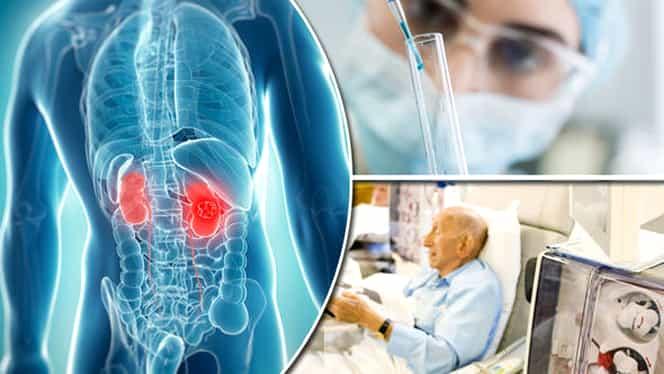 Cercetătorii americani au descoperit o nouă metodă de tratare a cancerului
