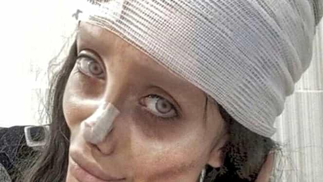 Femeia care și-a făcut nenumărate operații estetice ca să arate ca Angelina Jolie a fost arestată