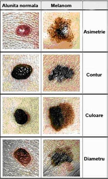 Ce este cancerul de piele: simptome, diagnostic și tratament. Iată primele semne