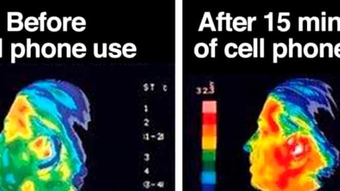 Vorbeşti mult la telefon? Legătura dintre cancer şi iradierea cu telefonul mobil!