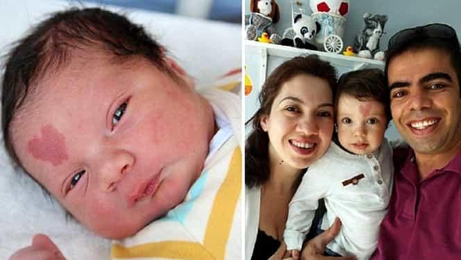Copilul care s-a născut cu o inimă în frunte. Ce s-a întâmplat cu el când a împlinit 4 anișori – Video