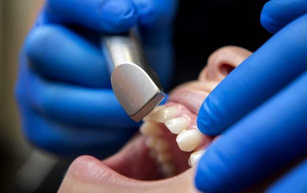 Clinica din Pitești, prima reacție în cazul copilului mort în urma anesteziei generale! Dentist