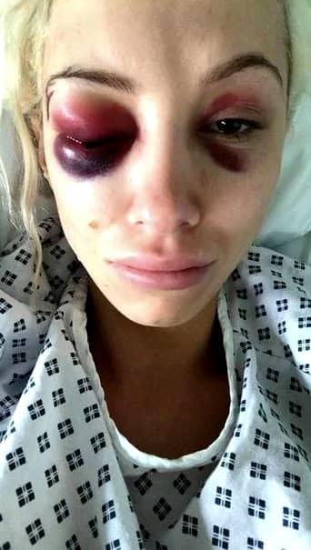 A fost bătută cu bestialitate de iubit