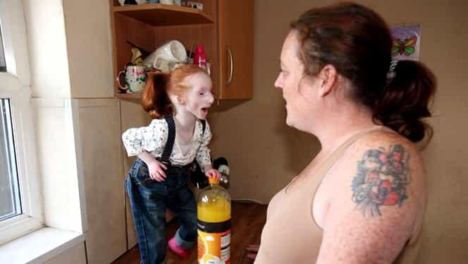 Va mai amintiti de cea mai mica fetita din lume? Zici ca e papusa vie! Cum arata acum, la varsta de 10 ani?