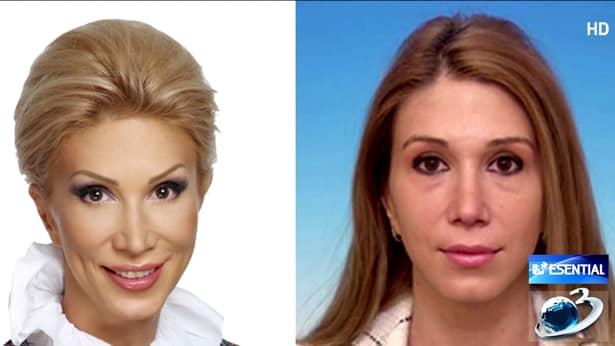 Cum arăta Raluca Turcan înainte de operaţiile estetice. Intervenţiile au schimbat-o radical. FOTO