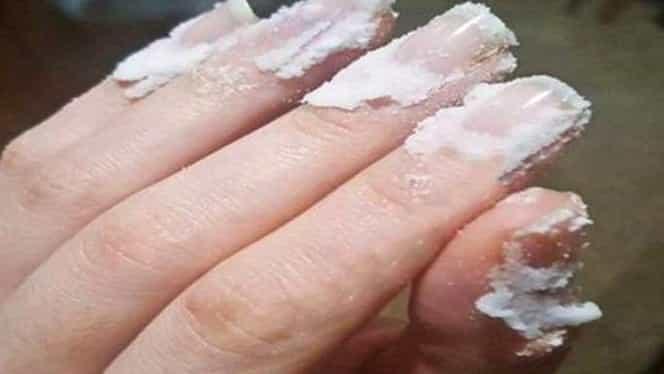 Ce efecte are bicarbonatul de sodiu asupra pielii și unghiilor. Cum poate fi folosit pentru înfrumusețare