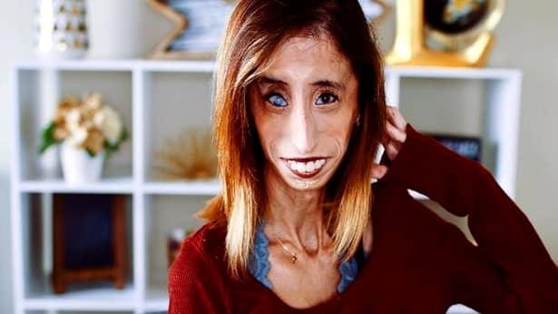 Cum arată acum Lizzie Velasquez, considerată cea mai urâtă femeie din lume. De ce arată așa