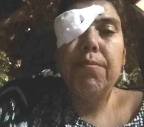 Ioana Tufaru a avut parte de un incident neplăcut. Fiul ei (3) i-a băgat degetul în ochi, iar aceasta a avut nevoie urgentă de intervenția medicilor de specialitate.