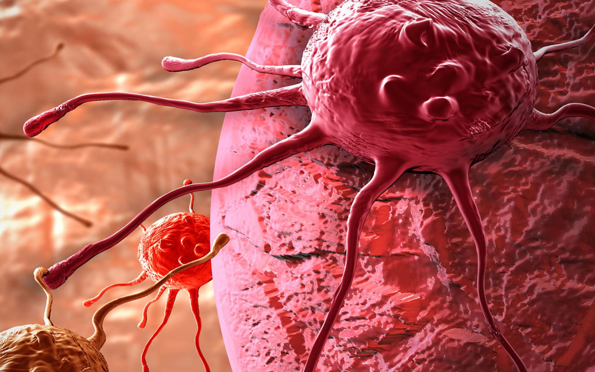 cum poti afla rapid daca ai cancer depistat australieni