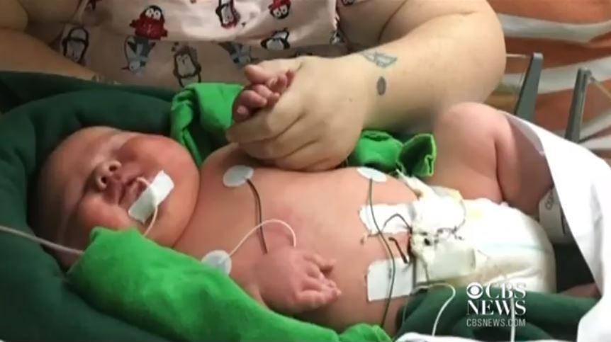 Ali James Medlock, bebeluşul care s-a născut cu o greutate de 7 kilograme