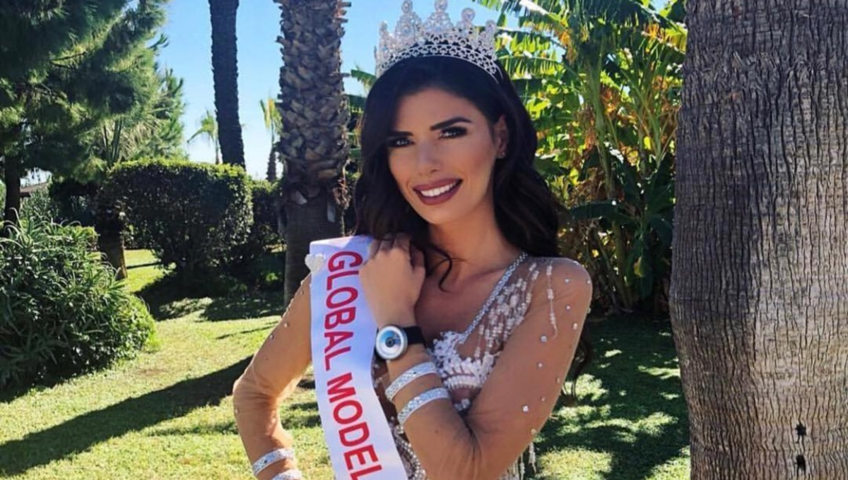 Miss România, complexată de ceea ce spuneau unii oameni de buzele sale prea voluminoase.