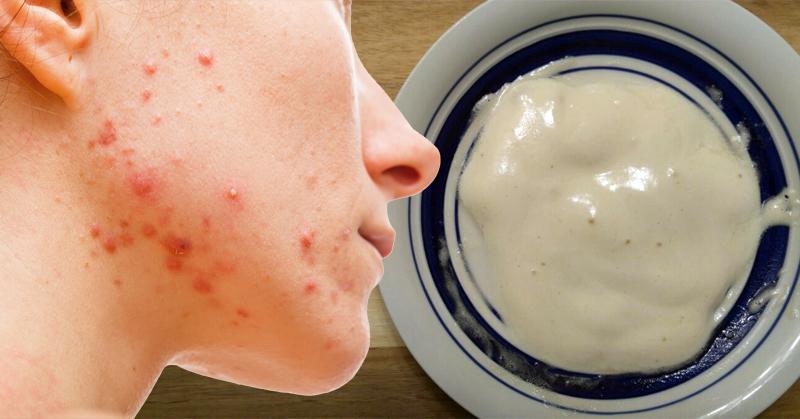 Bicarbonatul de sodiu = remediu simplu împotriva acneei și psoriazisului