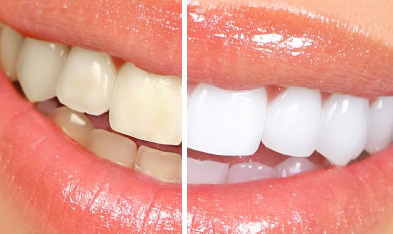 Bicarbonat de sodiu = dantură mai albă, mai sănătoasă. Atenție: nu abuzați!