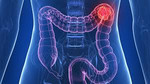 Cancer de colon: simptome, tartament, diagnostic