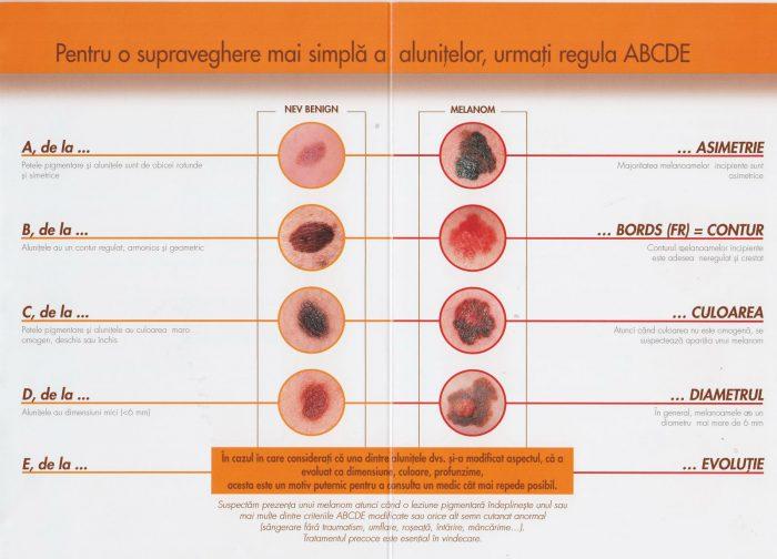 Cancerul de piele: simptome și diagnostic