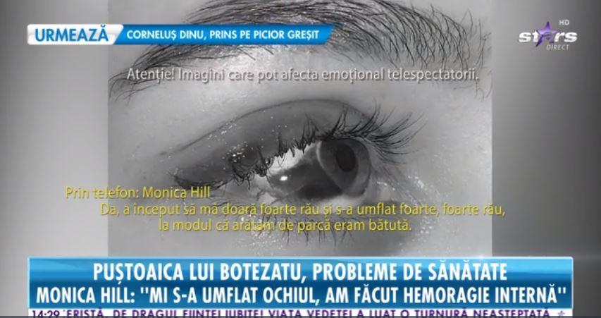 Monica Hill, iubita lui Cătălin Botezatu, suferă de o afecțiune gravă la ochi. În ce stadiu e acum
