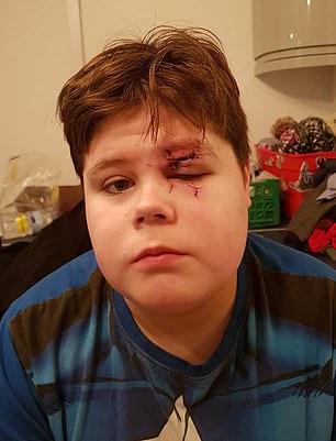 Copil de 15 ani, desfigurat de un coleg de clasă în timpul orelor. Agresorul n-a ținut cont că avea ochelari!