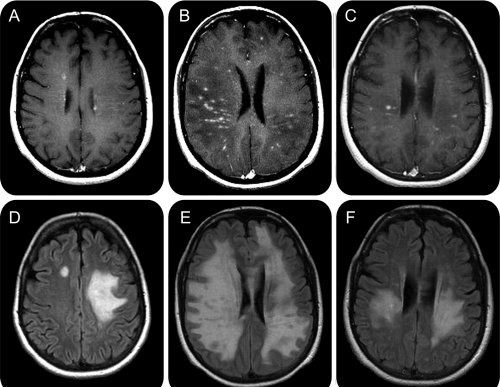 scleroza multipla selma blair