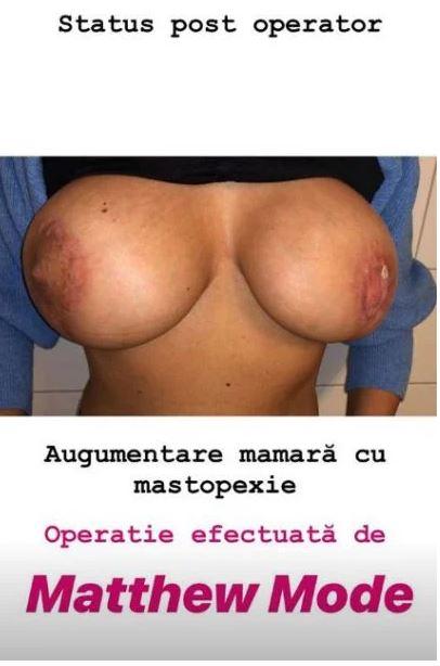 Medicul italian fals și-a mutilat pacientele! Imagini cu busturile femeilor operate de el
