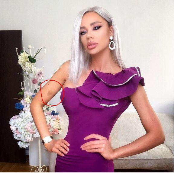 Bianca Drăgușanu, agresată de fostul iubit! E plină de vânătăi, după incidentul de la ziua ei