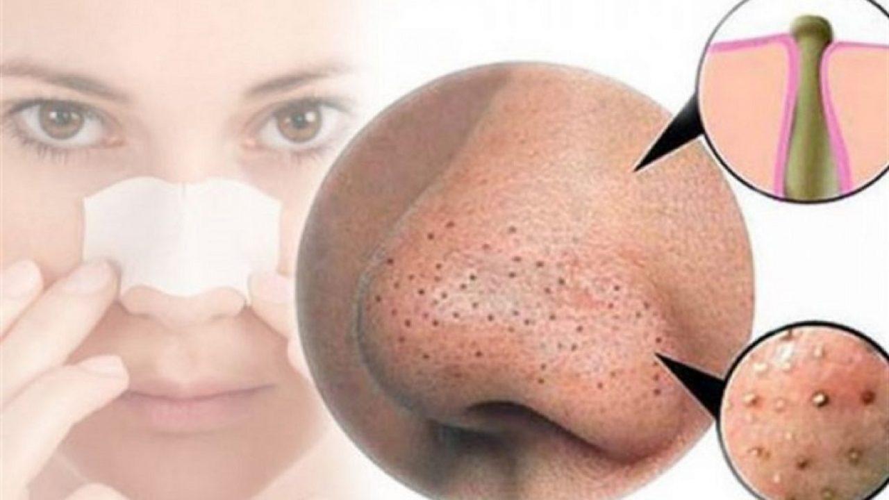 Masca pentru puncte negre cu pasta de dinti si bicarbonat