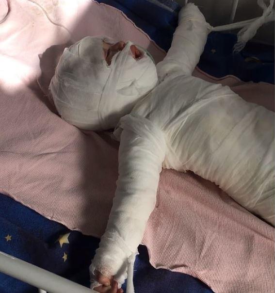 Copil de un an a murit după ce a căzut într-o cratiță cu apă clocotită. Mama lui tocmai se pregătea să-i facă o baie