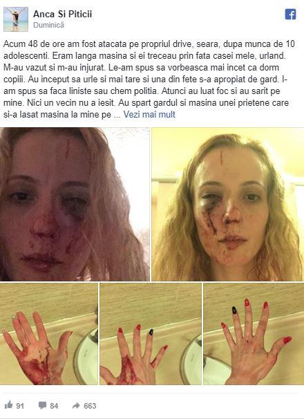 Româncă desfigurată pe stradă, în Marea Britanie! Motivul pentru care au bătut-o mai mulți tineri