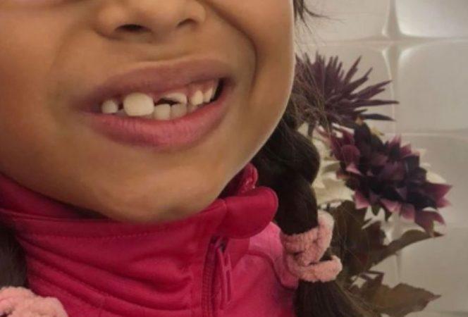 Fiica lui Laurette s-a ales cu dinții sparți la școală, după un atac rasial