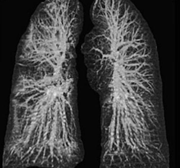 Medicii au făcut publice radiografiile primilor bolnavi de coronavirus din Italia